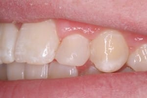Dental work, after photo using bonding, Curry and Taylor DDS, 3815 Beck Road, St.Joseph, MO, 64506