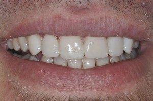 After getting dental veneers placed, CCurry and Taylor DDS, 3815 Beck Road, St.Joseph, MO, 64506