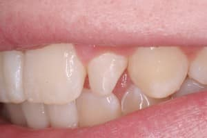 Photo of tooth before bonding technique, Curry and Taylor DDS, 3815 Beck Road, St.Joseph, MO, 64506