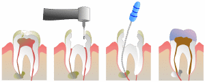 Crown and bridge are dental procedures for missing teeth or is used after a root canal has been done. Foundations of Heath Dental Care in St. Joseph practice restorative dentistry.