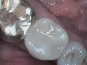 Restorative Dentistry using gold and composit to restore a fractured tooth in St. Joseph.